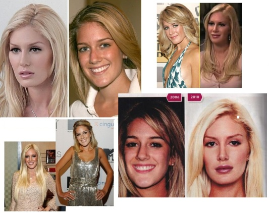 From Heidi to Barbie Pratt
